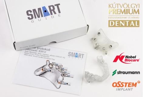 Digitális navigációs sablon minden implantátum típushoz - PREMIUM DENTAL fogászat, Budapest