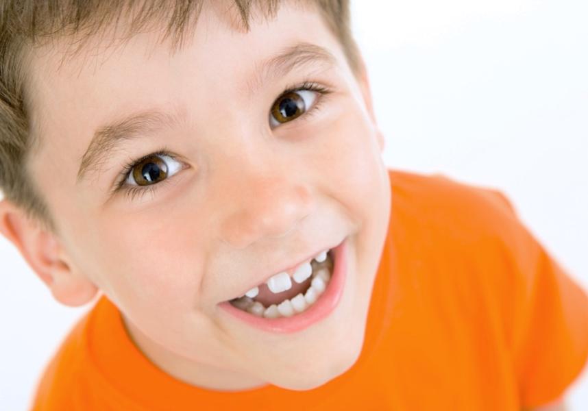 Barázdazárással megelőzhető a tejfogak és a maradó fogak szuvasodása - PREMIUM DENTAL fogászat, Budapest